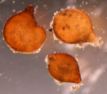Mature female cysts of soybean cyst nematode Heterodera glycines, extracted from a soil sample full of live nematode eggs viewed under the stereomicroscope.