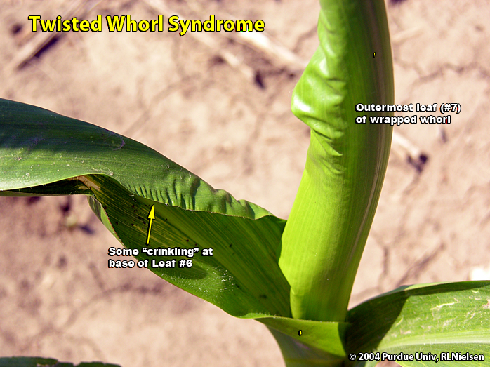 Twisted Whorl Syndrome